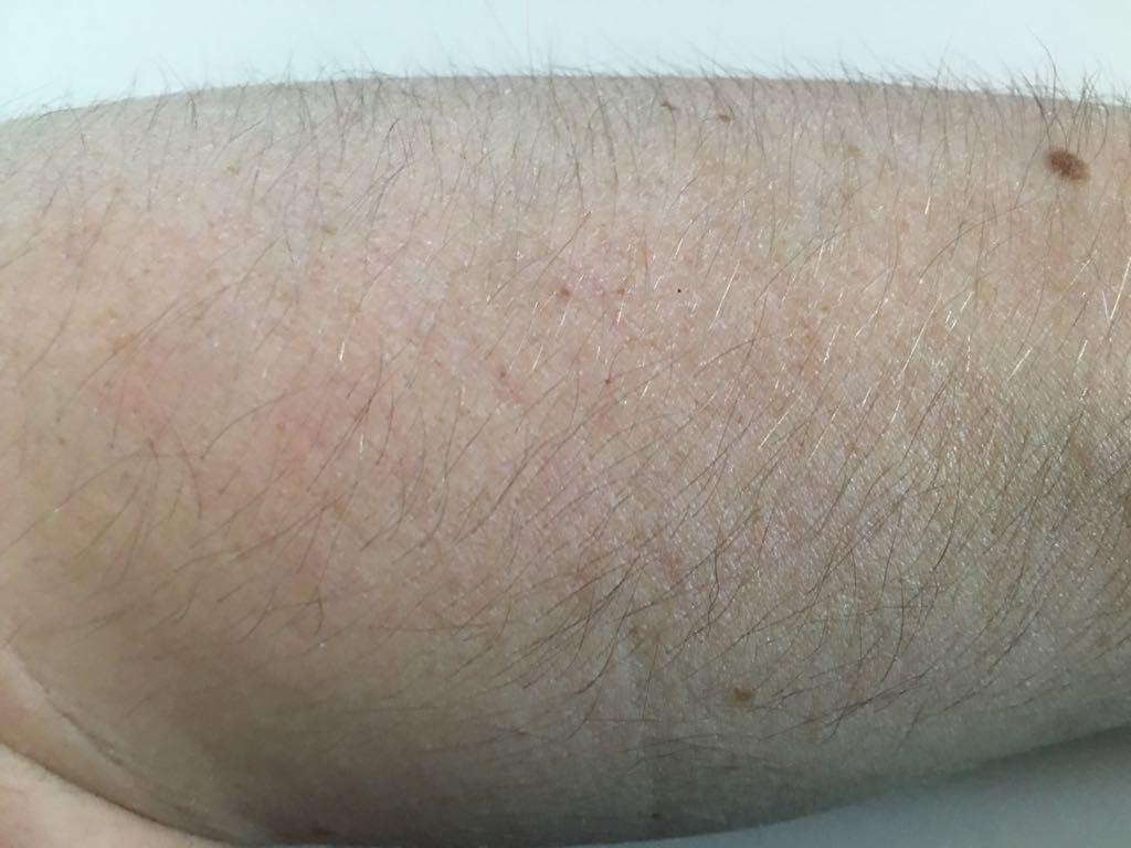 Untergewicht Symptome - trockene Haut - Philip Baum